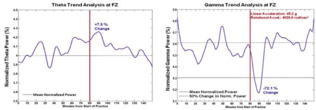 EEG graph showing sport concussion by expert witness Dr. John Lloyd