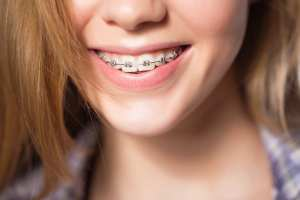 Are You Worried about the Cost of Sherman Oaks Braces