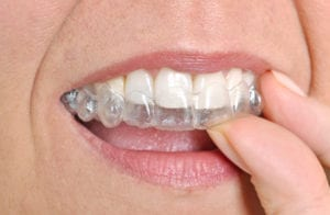 Where to Go for Reseda Invisalign Braces