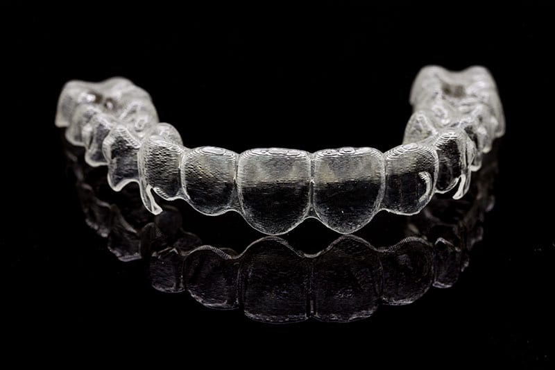invisalign braces in encino