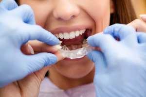 Tarzana Orthodontist