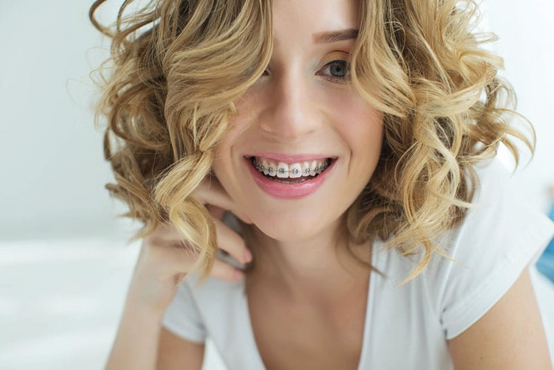 Encino for Adult Braces