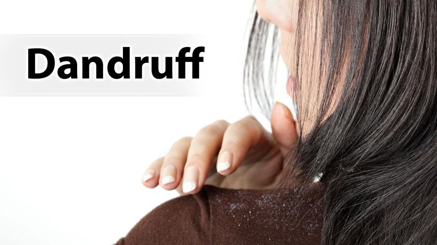 Dandruff Treatment at Home in Hindi - Balo ki Rusi