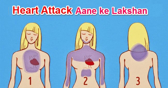 Heart Attack ke Lakshan in Hindi 1 Mahine Phele Dil ki Bimari ke Symptoms