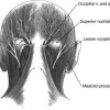 The nerves move through the fascia to get to the skin of the scalp.