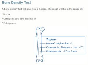 A bone density score higher than -1 is normal.