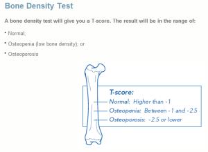 A bone density score higher than -1 is normal.