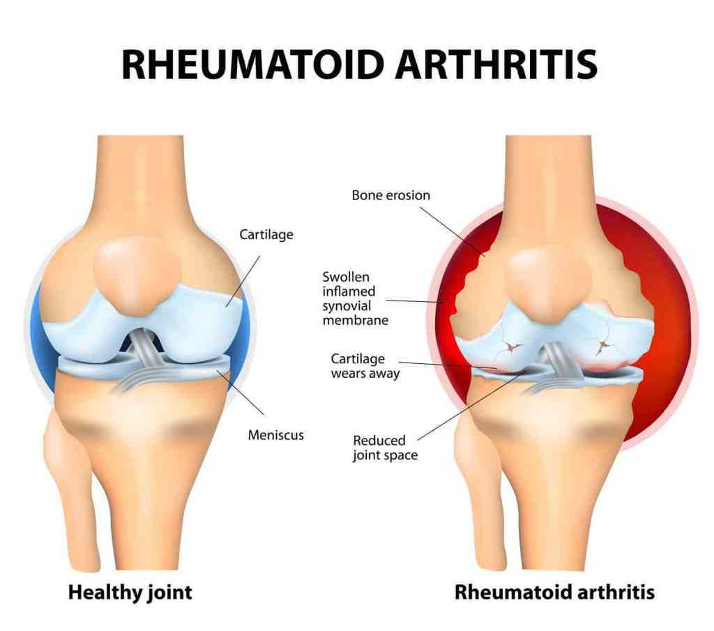 Rheumatoid Arthritis: Symptoms, Causes, & Diagnosis - DrBurke