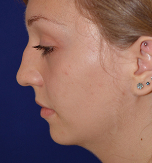 nose reshaping before
