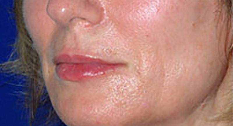 Lip enhancement after