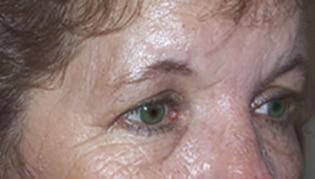 eyelid lift before