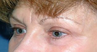 eyebrows lift