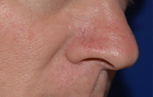 Laser procedure before