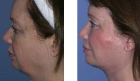 Before-and-After-Eyelid-Lift-Patient