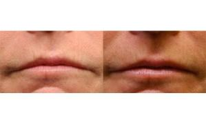 Before-and-After-LaViv-Fibroblast-Therapy