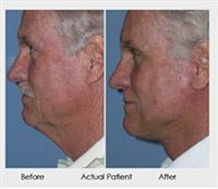 Neck-Lift-Before-and-After-3.jpg