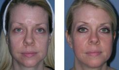 Dr Chernoff Indianapolis Dot CO2 Laser Before After