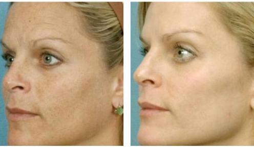 Dr Chernoff Indianapolis Laser Skin Rejuvenation Before After