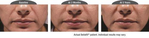 nasolabial b&a_Patient 10