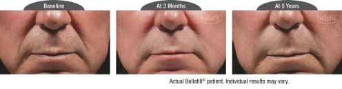 nasolabial b&a_Patient 4