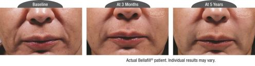 nasolabial b&a_Patient 5