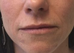 After Vollure (Smile Lines) and Juvederm (Lips)