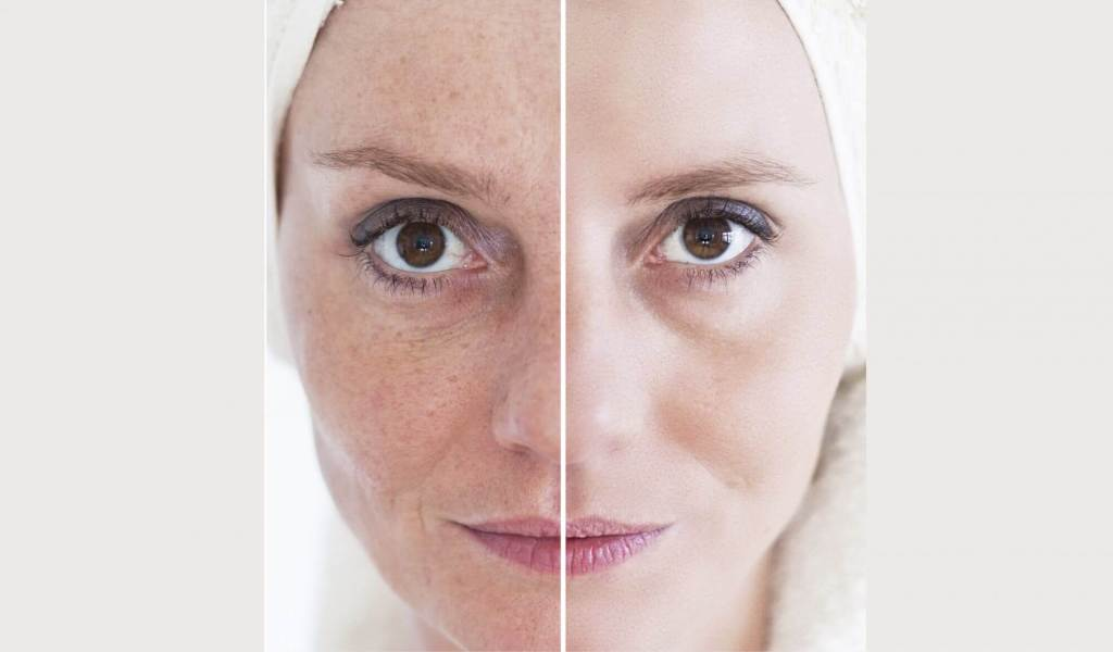 DOT Laser Chernoff Cosmetic Surgery
