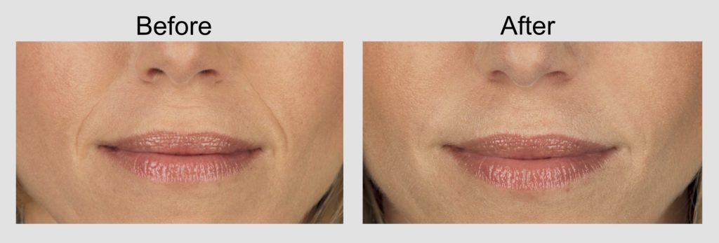 , Juvederm XC (Wrinkle & Lip Filler)