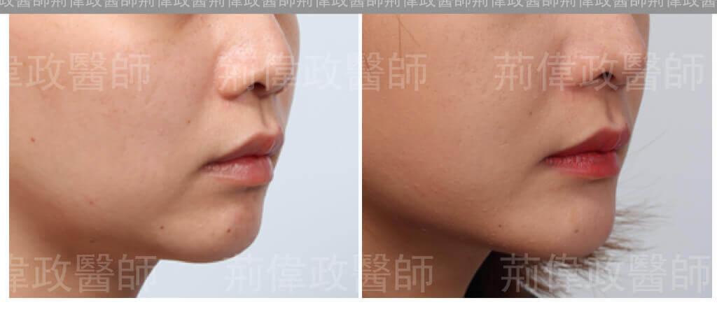 下巴手術效果展示-下巴整形推薦-4