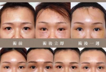 拉皮、拉皮效果、整形外科醫師推薦、台北整型診所推薦、提眉手術價格 (1).jpeg