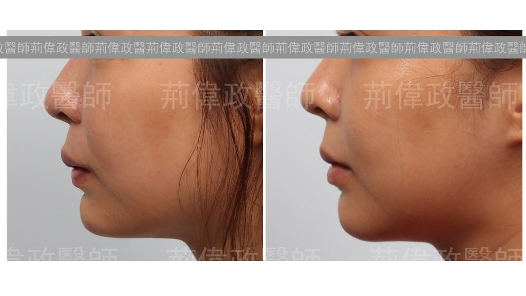 矽膠墊下巴重修(咬合不正合併下巴後縮過短),之後取出矽膠、正顎手術、下巴截骨手術。