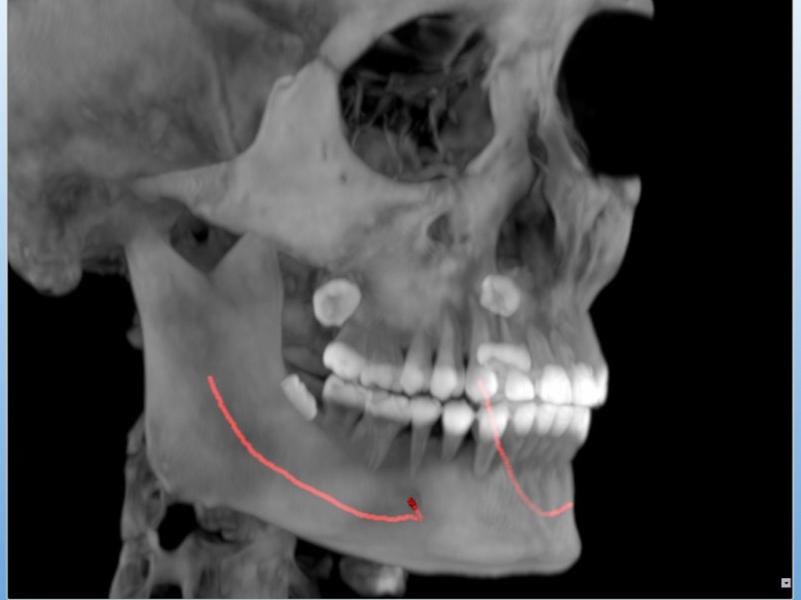 下巴手術影響人體骨骼圖