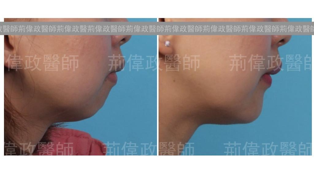 下巴手術經典案例-2