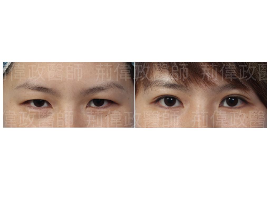荊醫師、眼整形權威、提眼瞼肌、眼瞼肌無力、眼整形推薦、台北雙眼皮手術推薦、訂書針雙眼皮、雙眼皮ptt、割雙眼皮推薦醫師.jpeg