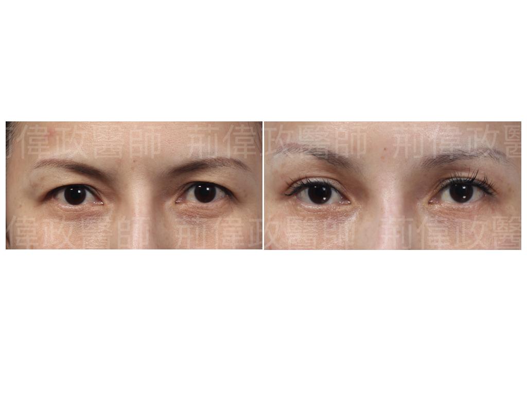 荊醫師、台北雙眼皮手術推薦、割雙眼皮手術醫師推薦、雙眼皮手術失敗、整形外科醫師推薦、台北有名整型診所推薦、雙眼皮ptt、台北雙眼皮手術推薦、割雙眼皮推薦醫師.jpeg