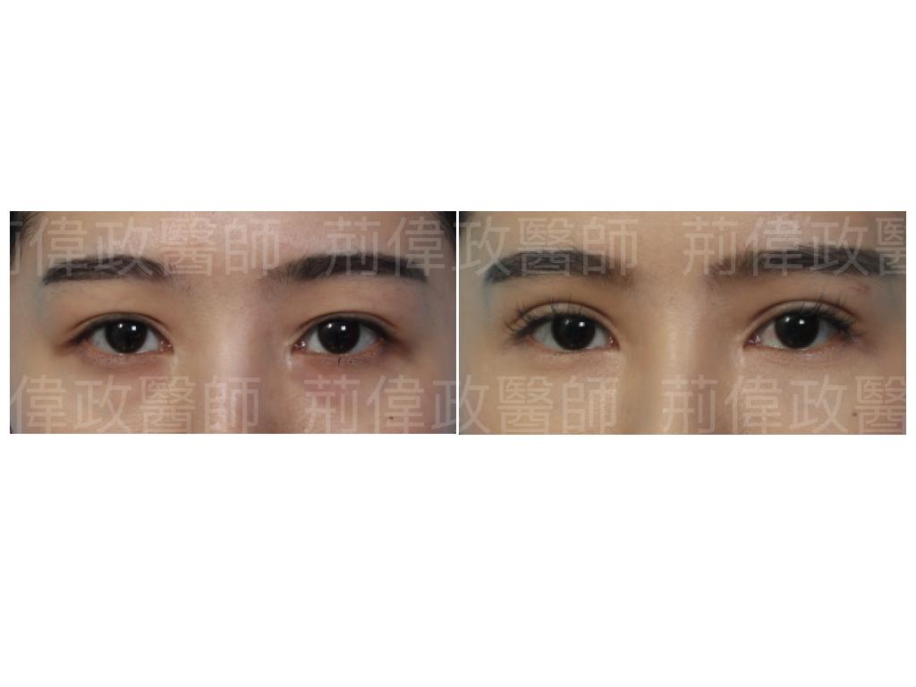 眼整形、雙眼皮、台北雙眼皮手術推薦、訂書針雙眼皮、割雙眼皮手術醫師推薦、整形外科醫師推薦、台北有名整型診所推薦、雙眼皮ptt、台北雙眼皮手術推薦.jpeg