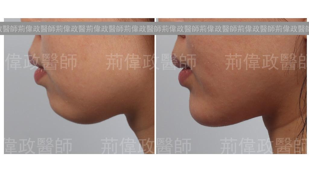 下巴手術經典案例-4