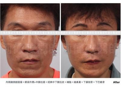 提眉肌、直接提眉、提眉手術ptt、微創拉皮.jpeg