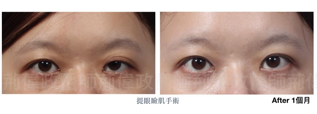 雙眼皮、眼瞼肌無力價錢、眼瞼肌無力ptt、提眼肌運動、提眼肌手術風險.jpeg