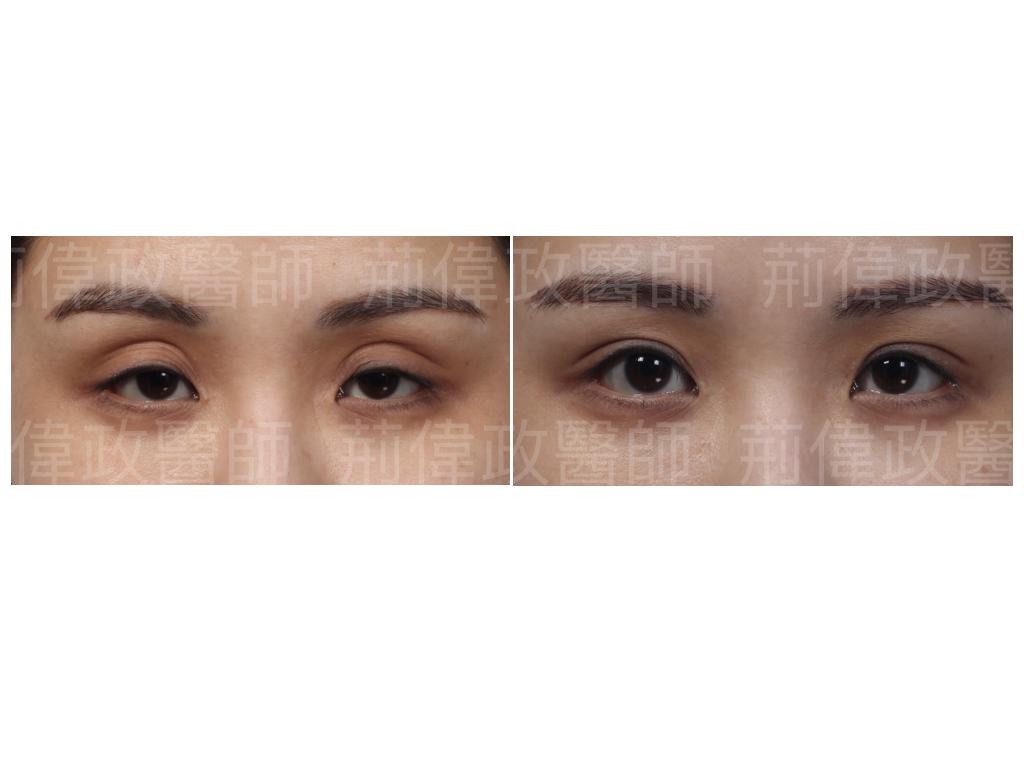 荊醫師、提眼瞼肌、眼瞼肌無力、雙眼皮手術失敗、大小眼、整形外科醫師推薦、台北有名整型診所推薦、眼瞼肌無力ptt、提眼肌運動.jpeg