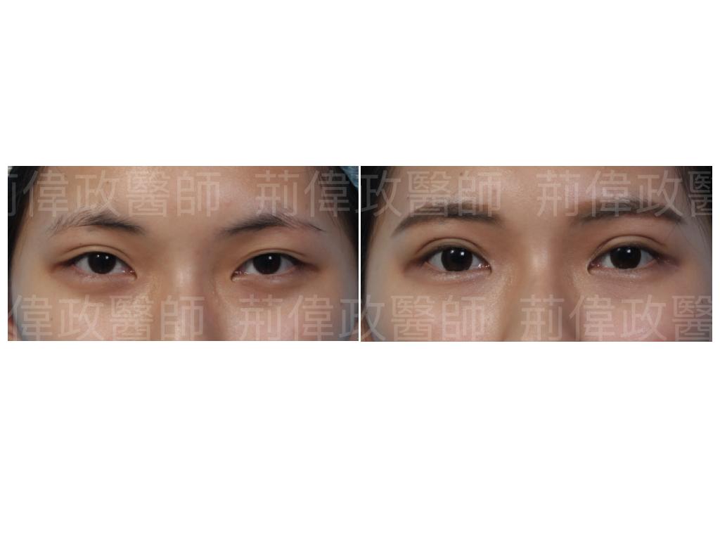 荊醫師、極緻、眼整形權威、割雙眼皮、割雙眼皮恢復期多久、台北雙眼皮手術推薦、訂書針雙眼皮、提眼肌ptt、提眼肌醫師.jpeg