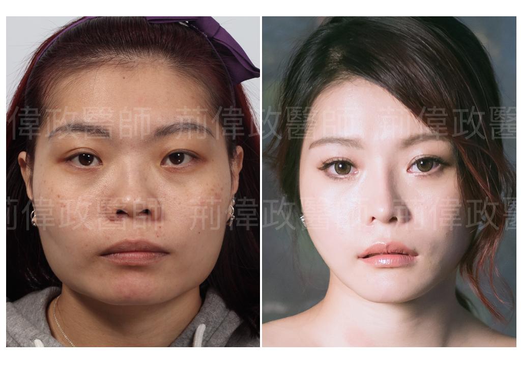 荊醫師、極緻醫美、眼整形權威、眼瞼肌無力價錢、眼瞼肌無力ptt、雙眼皮單眼皮、縫雙眼皮、割雙眼皮、割雙眼皮恢復期多久.jpeg