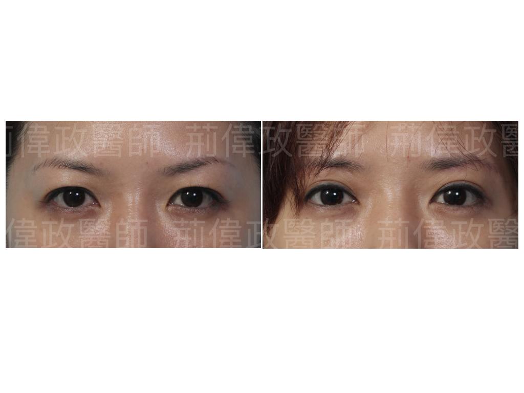 眼整形、極緻醫美、眼整形權威、香港雙眼皮手術價錢、眼瞼肌無力訓練、眼瞼肌無力價錢、眼瞼肌無力ptt、雙眼皮手術費用、雙眼皮手術推薦.jpeg