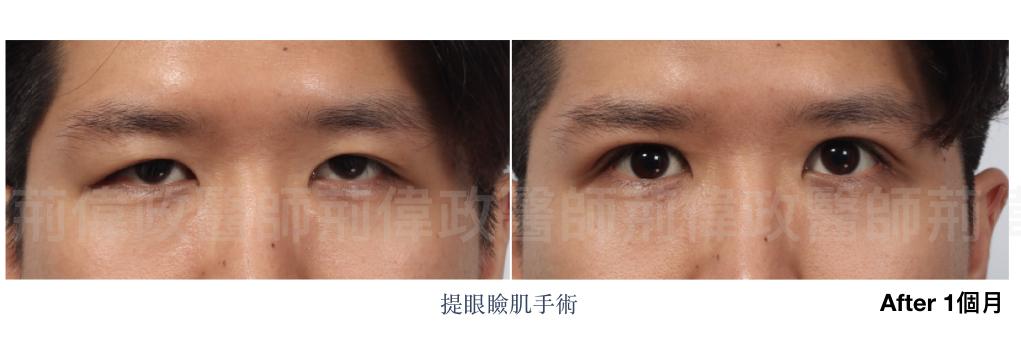 荊醫師、大小眼、整形外科醫師推薦、台北有名整型診所推薦、雙眼皮ptt.jpeg