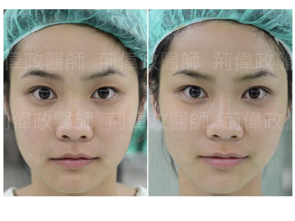荊偉政醫師、雙眼皮手術推薦、雙眼皮自然形成、割雙眼皮恢復期多久、台北雙眼皮手術推薦、大小眼、整形外科醫師推薦、台北雙眼皮權威、台北雙眼皮手術推薦.jpeg