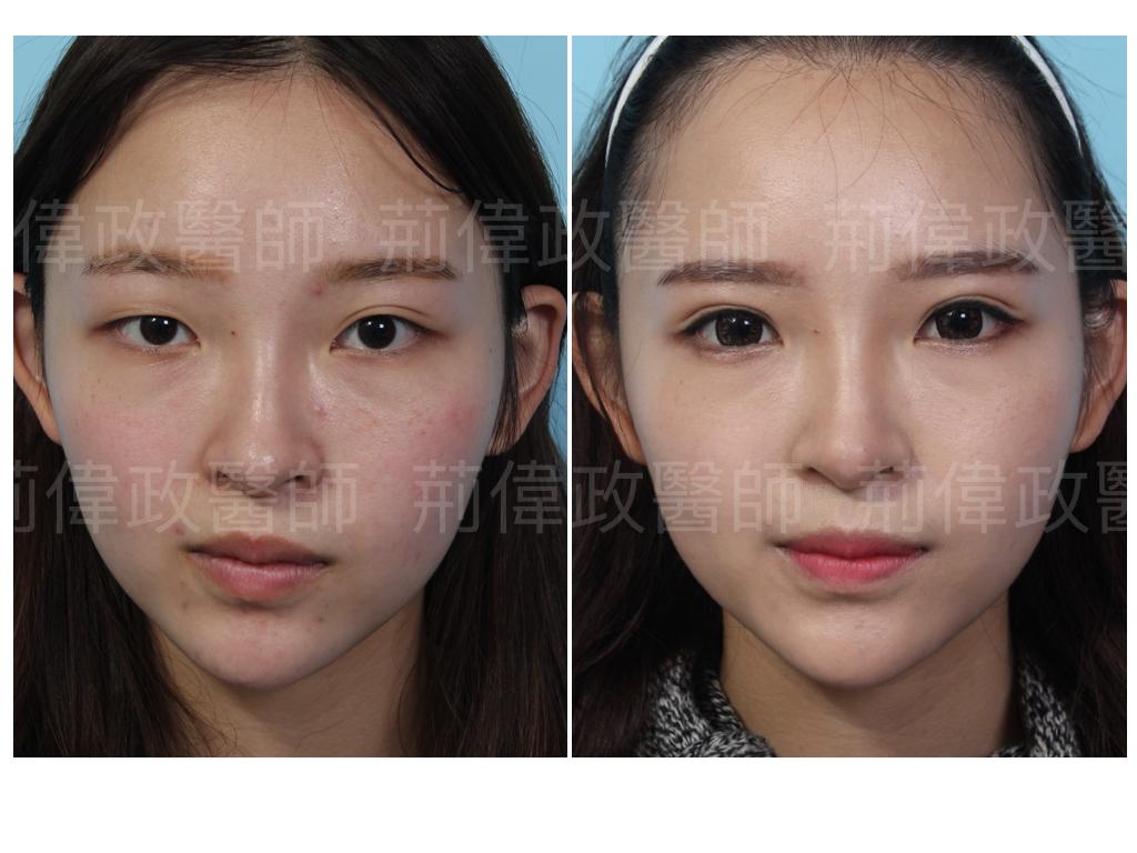 縫雙眼皮、雙眼皮手術費用、雙眼皮手術推薦、極緻醫美、眼整形權威、台中割雙眼皮價錢、高雄割雙眼皮價錢、香港雙眼皮手術價錢、眼瞼肌無力訓練.jpeg