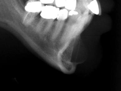下巴失敗-整形失敗如何挽救,下巴整形X光圖