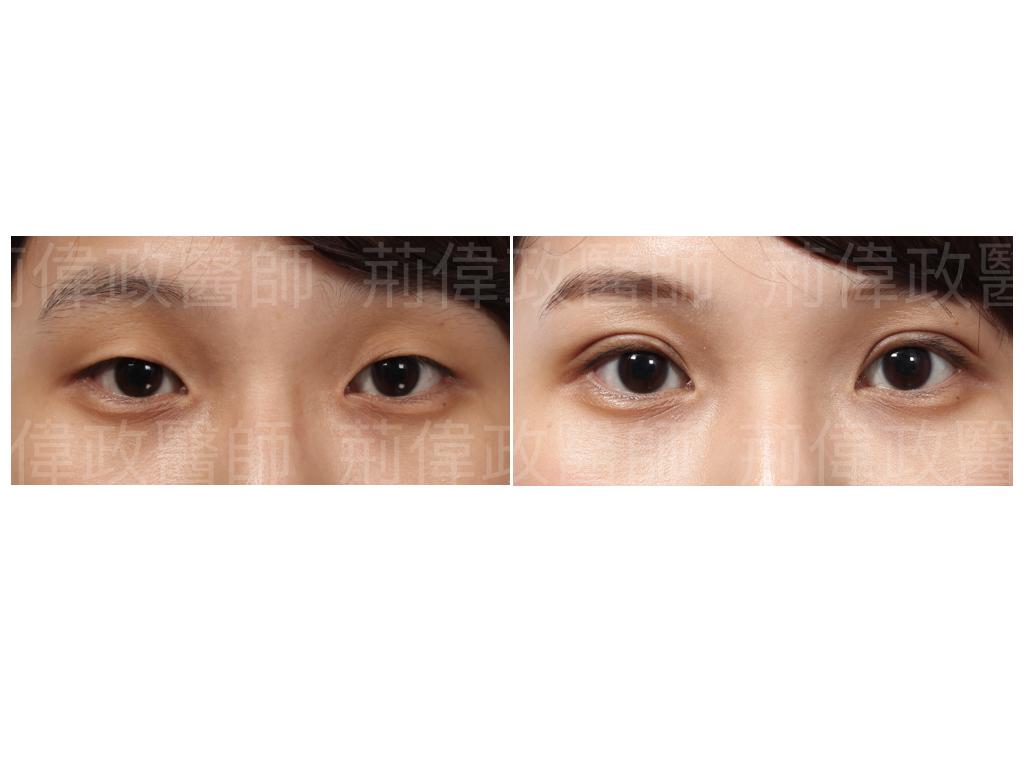 荊偉政醫師、眼整形權威、眼整形外科、雙眼皮手術費用、雙眼皮手術推薦、雙眼皮自然形成、割雙眼皮推薦醫師、台北雙眼皮權威、台北雙眼皮手術推薦、台南割雙眼皮價錢.jpeg