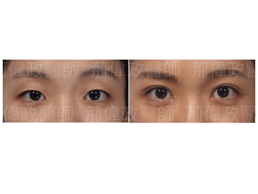 荊醫師、極緻醫美、眼整形權威、眼整形外科、雙眼皮手術費用、雙眼皮手術推薦、割雙眼皮、割雙眼皮恢復期多久、整形外科醫師推薦.jpeg
