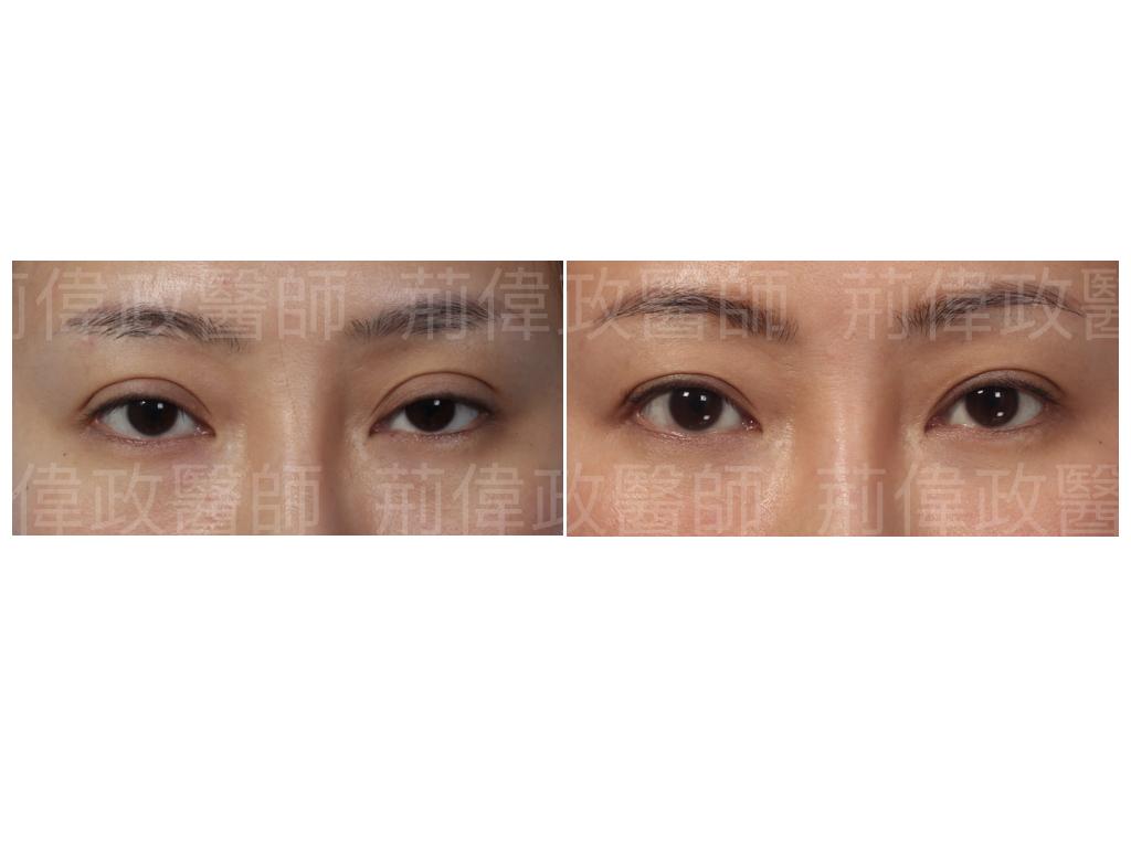 提眼瞼肌、眼瞼肌無力、眼整形推薦、眼整形外科、極緻、眼整形權威、提眼肌手術風險、提眼肌手術費用、提眼肌手術復原.jpeg